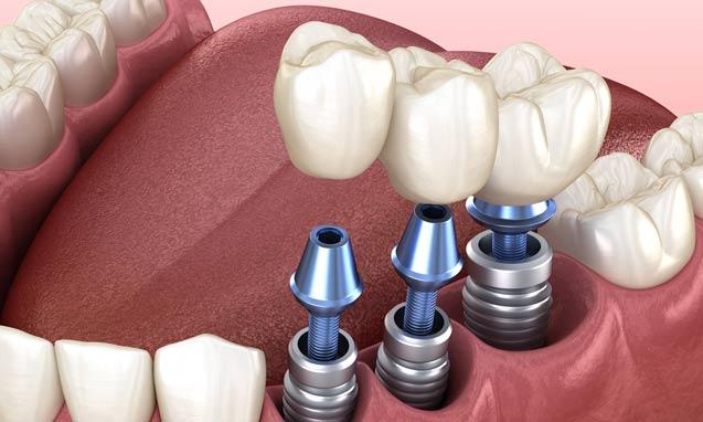 השתלת שיניים ביום אחד – השיטות השונות