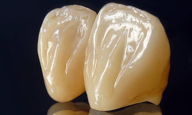 כתר זירקוניה לשיניים