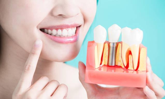 השתלת שיניים מהי?