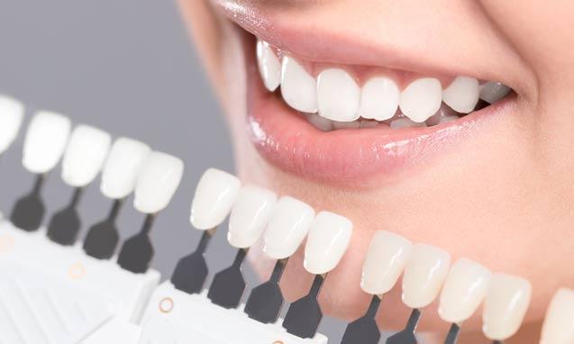 סוגים שונים של ציפוי חרסינה לשיניים