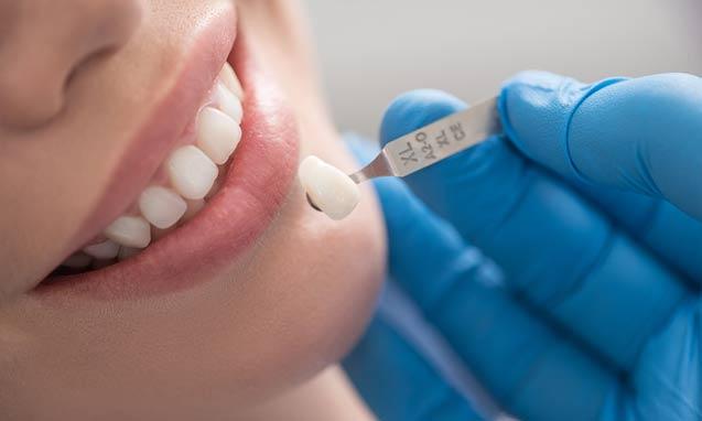 ציפוי לשיניים קדמיות – סוגי הציפויים השונים ותהליך הציפוי